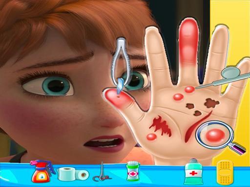 Anna frozen Hand Doctor: Fun Games for Girls Onlin